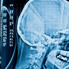 What Evidence Will You Need to Help a TBI Victim?